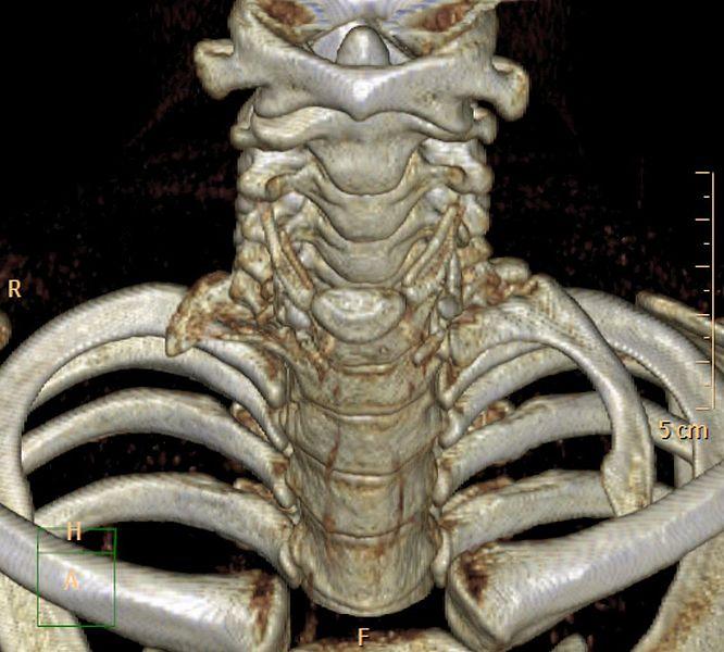 YT - MJJ20Girl Cervical-rib